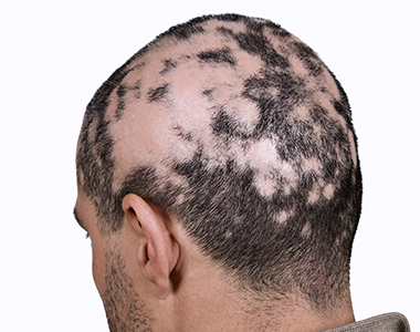 MAn-suffering-with-Alopecia-Areata