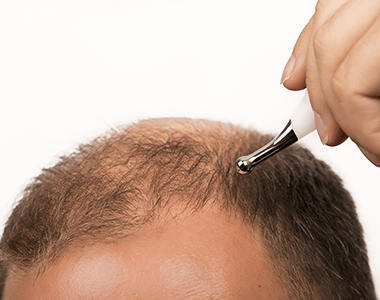 Male-pattern-Hair-Loss-treatment
