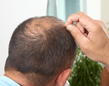 Male-pattern-Hair-Loss