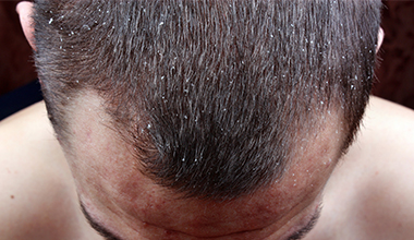 Male-with-Dandruff